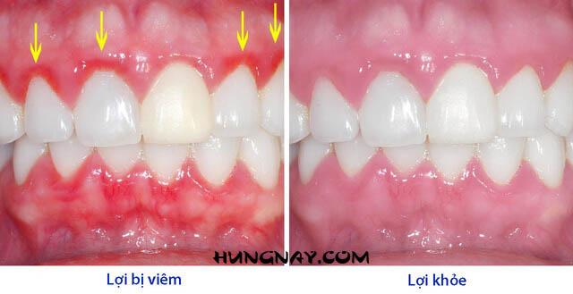 lợi trước và sau khi dùng máy tăm nước iris waterpick